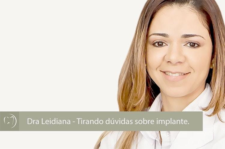 Dra Leidiana – Tirando dúvidas sobre Implantes.