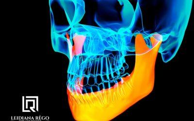 Enxerto Ósseo para Implantes Dentários – Dentista Especialista em Manaus