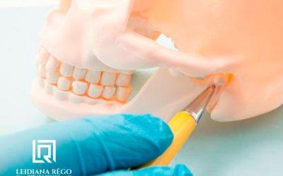 Bucomaxilofacial – Dentista Especialista em Manaus