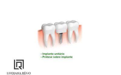 Implante Dental Unitário Clínica Odontológica – Dentista Especialista em Manaus