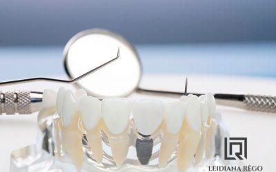 Implante dentário Carga Imediata Manaus – Clínica Odontológica – Dentista