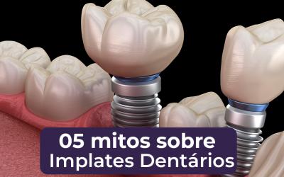 5 Mitos sobre Implantes Dentários – Manaus – Clínica Odontológica – Dentista