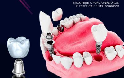 10 Principais Benefícios do Implante Dentário- Por que você deve fazer- Manaus – Clínica Odontológica