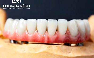 Consequência Prótese Dentária como Repercussão na Vida dos Brasileiros – Clínica Odontológica Dentista Manaus