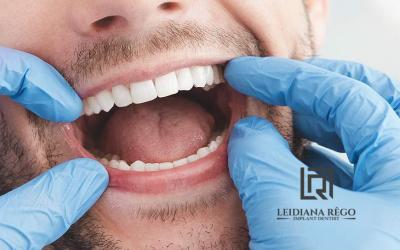 Conheça Alguns Benefícios do Implante Dentário – Clínica Odontológica Dentista Manaus
