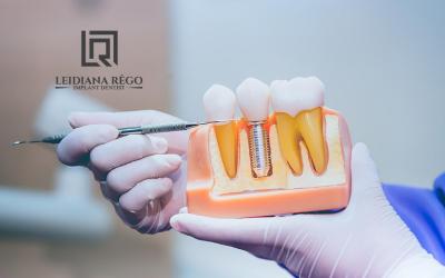Dói colocar Implante Dentário? – Dra. Leidiana Rêgo – Clínica Odontológica Dentista Manaus