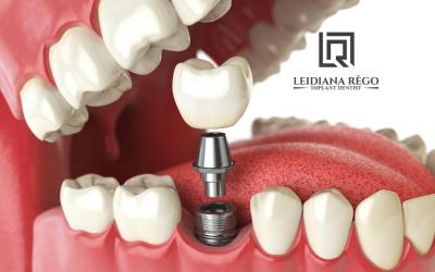 Você sabe o que é Carga Imediata? – Dra. Leidiana Rêgo – Clínica Odontológica Dentista Manaus